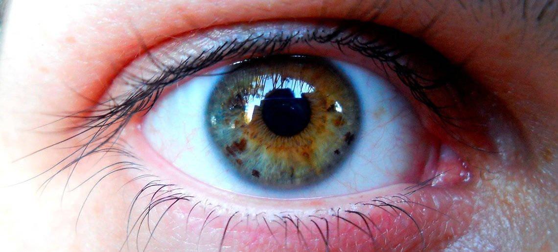 7 Doenças oculares infantis #2